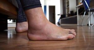 Το πόδι ατόμων μετά από το α ο στενός επάνω περίπατος τραυματισμών συνδέσμων απόθεμα βίντεο