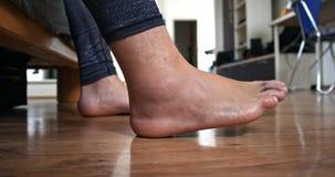 Το πόδι ατόμων μετά από το α στενός επάνω τραυματισμών συνδέσμων απόθεμα βίντεο