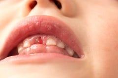 Το στόμα ενός αγοριού χωρίς ένα δόντι Στοκ φωτογραφίες με δικαίωμα ελεύθερης χρήσης