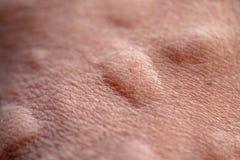 Το τραύμα με τα πόδια μετά από προκαλούμενος από τα δαγκώματα μυρμηγκιών το κόκκινο εισαγόμενο μυρμήγκι πυρκαγιάς στοκ εικόνες