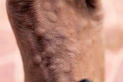 Το τραύμα με τα πόδια μετά από προκαλούμενος από τα δαγκώματα μυρμηγκιών το κόκκινο εισαγόμενο μυρμήγκι πυρκαγιάς στοκ εικόνα