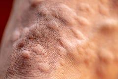 Το τραύμα με τα πόδια μετά από προκαλούμενος από τα δαγκώματα μυρμηγκιών το κόκκινο εισαγόμενο μυρμήγκι πυρκαγιάς στοκ φωτογραφίες