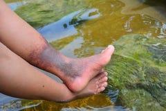 Το φυσικό καυτό ελατήριο ανακουφίζει τα βαθιά προβλήματα θρόμβωσης φλεβών στα θηλυκά πόδια στοκ εικόνες με δικαίωμα ελεύθερης χρήσης