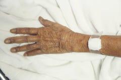 Το χέρι είναι σε μια σταλαγματιά που λαμβάνει μια αλατούχο λύση στοκ φωτογραφία με δικαίωμα ελεύθερης χρήσης