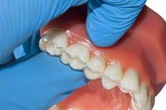 Το χέρι οδοντιάτρων παρουσιάζει αόρατο orthodontic ευθυγραμμιστή Στοκ Εικόνα