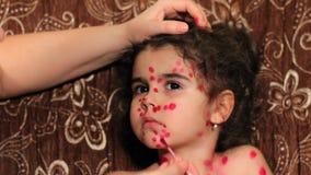 Το όμορφο μικρό κορίτσι έχει φλυκταινώδη νόσο κοτόπουλου Στενός επάνω προσώπου παιδιών ` s Τα θηλυκά όπλα λερώνουν μια έκρηξη σε  απόθεμα βίντεο
