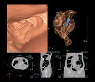Το colonography CT είναι ιδιαίτερα ευαίσθητο για τον του ορθού και του κόλου καρκίνο, τρισδιάστατη δίνοντας εικόνα στοκ εικόνες