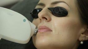 Το Cosmetologist κάνει την αφαίρεση τρίχας λέιζερ στο πρόσωπο του ασθενή Διαδικασία Epilation απόθεμα βίντεο