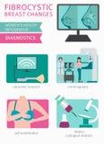 Το Fibrocystic στήθος αλλάζει την ασθένεια, ιατρικός infographic Diagnos απεικόνιση αποθεμάτων