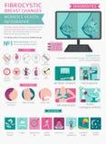 Το Fibrocystic στήθος αλλάζει την ασθένεια, ιατρικός infographic Diagnos ελεύθερη απεικόνιση δικαιώματος