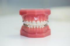 Το Orthodontic πρότυπο, καθαρίζει το στήριγμα Στοκ εικόνες με δικαίωμα ελεύθερης χρήσης