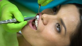 Το Stomatologist βάζει τη σφαίρα βαμβακιού κοντά στο άρρωστο δόντι, απομόνωση από το σάλιο, κινηματογράφηση σε πρώτο πλάνο απόθεμα βίντεο
