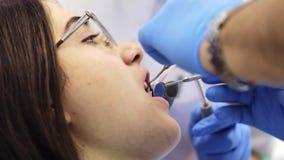 Το Stomatologist ελέγχει επάνω των δοντιών της γυναίκας με τον οδοντικό καθρέφτη απόθεμα βίντεο