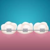 Τρία δόντια σε ginival με τις βάσεις ελεύθερη απεικόνιση δικαιώματος