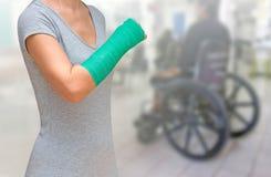 Τραυματισμένη γυναίκα με πράσινο χυτό σε διαθεσιμότητα και βραχίονας στο θολωμένο backgro Στοκ Εικόνα