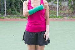 τραυματισμένη γυναίκα που σπάζουν στο βραχίονα με το βραχίονα χυτό στάση στο πάτωμα Στοκ Εικόνες