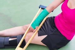 Τραυματισμένη γυναίκα που φορά sportswear τον επίπονο βραχίονα με τον επίδεσμο γάζας Στοκ φωτογραφία με δικαίωμα ελεύθερης χρήσης