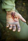 Τραυματισμένο αίμα περικοπών χεριών Στοκ εικόνες με δικαίωμα ελεύθερης χρήσης