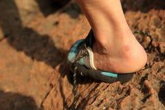 Τραυματισμένο τακούνι ορειβατών βράχου στοκ εικόνα