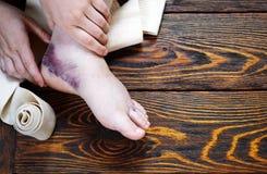 Τραυματισμός αστραγάλου με την εξάρθρωση και sprains, σφιχτός επίδεσμος με την ελαστική επεξεργασία επιδέσμων και αλοιφών στοκ εικόνα με δικαίωμα ελεύθερης χρήσης
