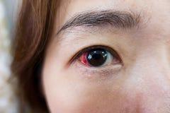 Τραυματισμός ματιών ή μολυσμένος για την υγιή έννοια, μακρο κινηματογράφηση σε πρώτο πλάνο στοκ εικόνα