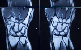 Τραυματισμός χεριών καρπών αποτελεσμάτων της δοκιμής ανίχνευσης MRI στοκ εικόνα