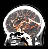 τρισδιάστατη δίνοντας εικόνα του ανθρώπινου εγκεφάλου που παρουσιάζει κανονικές αρτηρίες στο κεφάλι από τον ΑΝΙΧΝΕΥΤΉ CT στοκ φωτογραφίες