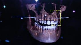 τρισδιάστατη οδοντική ψηφιακή αποκατάσταση διαμόρφωσης τρισδιάστατο πρότυπο των δοντιών, ανιχνευμένα δόντια του ασθενή Ο γιατρός  διανυσματική απεικόνιση