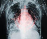 Τρόπος ζωής που στοχεύει ανθυγειινός στη ζημία καρδιών Στοκ φωτογραφία με δικαίωμα ελεύθερης χρήσης