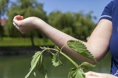 Τσιμπώντας nettle αλλεργική αντίδραση Στοκ φωτογραφία με δικαίωμα ελεύθερης χρήσης