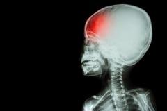 Των ακτίνων X σώμα ταινιών του παιδιού και του πονοκέφαλου (ασθένεια εγκεφάλου) (που απομονώνεται) Στοκ εικόνα με δικαίωμα ελεύθερης χρήσης