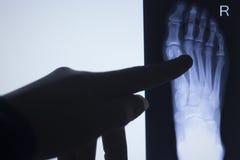 Των ακτίνων X ανίχνευση δοκιμής toe ποδιών Στοκ Εικόνα