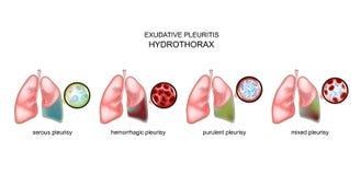 Τύποι exudative pleurisy και hydrothorax διανυσματική απεικόνιση