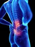 Τύπος που έχει τον πόνο στην πλάτη απεικόνιση αποθεμάτων