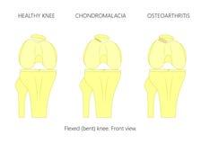 Υγιές γόνατο, Chondromalacia και Patellofemoral οστεοαρθρίτιδα Στοκ Εικόνες