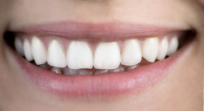 υγιές χαμόγελο στοκ φωτογραφία με δικαίωμα ελεύθερης χρήσης