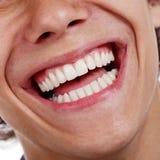 Υγιής κινηματογράφηση σε πρώτο πλάνο δοντιών στοκ εικόνες με δικαίωμα ελεύθερης χρήσης