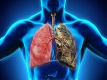 Υγιής πνεύμονας και πνεύμονας καπνιστών απεικόνιση αποθεμάτων