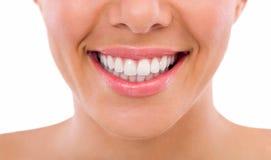 Υγιή δόντια γυναικών στοκ εικόνα