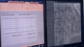 Υπέρηχος ενός πραγματικού κτύπου της καρδιάς Υπερηχητική εξέταση στη οθόνη υπολογιστή φιλμ μικρού μήκους