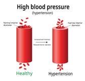 Υπέρταση, διάνυσμα υψηλής πίεσης αίματος, ελεύθερη απεικόνιση δικαιώματος