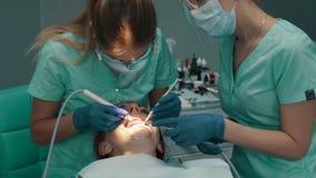 Υπερηχητικός καθαρισμός των δοντιών Αφαίρεση των στερεών δοντιών απόθεμα βίντεο