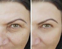Υπομονετικές ρυτίδες προσώπου πριν και μετά από η antiaging αφαίρεση υλικών πληρώσεως διαδικασίας ματιών κολλαγόνων στοκ φωτογραφίες με δικαίωμα ελεύθερης χρήσης