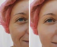 Υπομονετική δερματολογία ρυτίδων γυναικών προσώπου πριν και μετά από τις καλλυντικές διαδικασίες αντι-γήρανσης στοκ εικόνες με δικαίωμα ελεύθερης χρήσης
