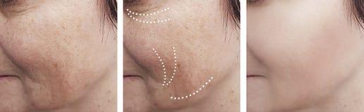 Υπομονετική διαφορά αναγέννησης αφαίρεσης ρυτίδων δερμάτων γυναικών μετά από cosmetology κολάζ την αντίθεση αναγέννησης στοκ εικόνες