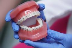 Υπό εξέταση orthodontics οδοντιάτρων στα στηρίγματα στοκ εικόνα με δικαίωμα ελεύθερης χρήσης