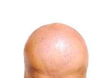 φαλακρό κεφάλι Στοκ Φωτογραφία