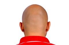 Φαλακρό κεφάλι στοκ φωτογραφία με δικαίωμα ελεύθερης χρήσης