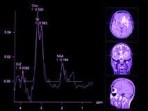φασματοσκοπία μαγνητικής μεσομέρειας εγκεφάλου στοκ εικόνα με δικαίωμα ελεύθερης χρήσης