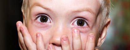 Φοβισμένο μικρό παιδί Στοκ φωτογραφίες με δικαίωμα ελεύθερης χρήσης